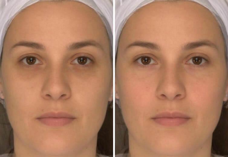 face health